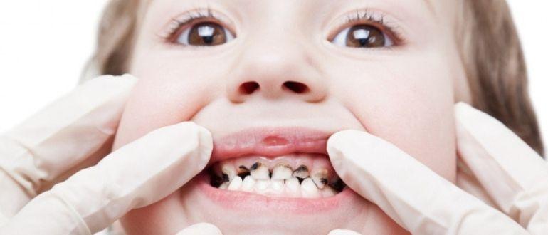 Когда требуется удалить молочный зуб. В каких случаях нужно волноваться, если зубы малыша меняются неправильно
